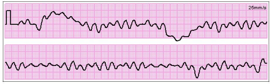 Arrêt Cardiaque - Fibrillation ventriculaire